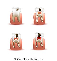 Set of human teeth with four different caries stages, infographic chart isolated on white