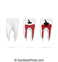 Stages Of Caries Development Isolated On White