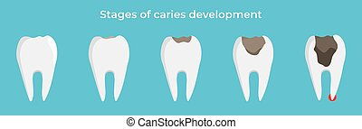 Stages of caries development, tooth dekay, dental concept, vector illustration on blue background.