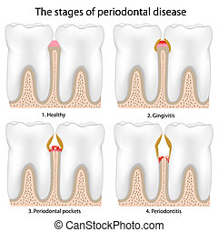 Stages of Periodontal Disease , eps8