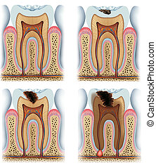 Process evolution and decay of a tooth