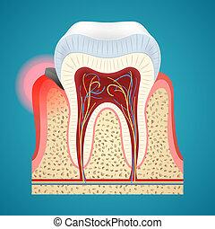 Start disease gum on human teeth
