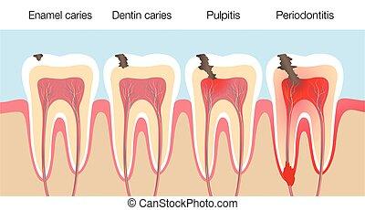 Teeth Caries Stages Pulpitis Periodontitis Enamel Caries