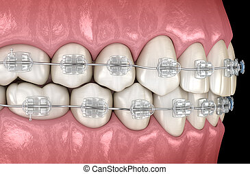 Teeth Clear braces in gums. Medically accurate dental 3D illustration