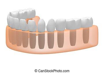 Teeth implants/ dental implants
