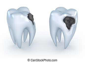 Teeth with caries, 3D image.
