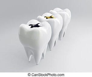 Teeth with gold, amalgam and composite inlay dental filling. Molars on white backdrop. Different types of fillings, 3d render