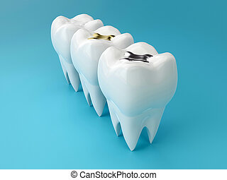 Teeth with gold, amalgam and composite inlay dental filling, perspective view. Different types of fillings, 3d render
