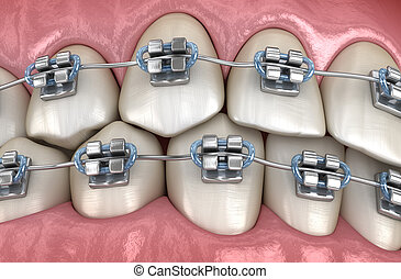 Teeth with metal braces in gums. Medically accurate dental 3D illustration