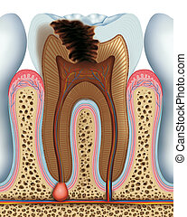 Cavity of a tooth in its advanced