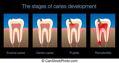 Tooth Decay Caries Stages Development Black Background