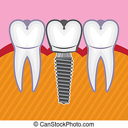 tooth implant illustration clip-art eps