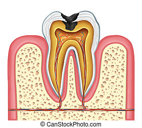 Tooth inner anatomy diagram as a dentist surgeon teeth symbol for dental clinic and oral specialist representing dentistry medicine and mouth surgery for a cavity decay illness on a frontal view white single molar tooth.