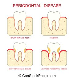 tooth periodontal disease