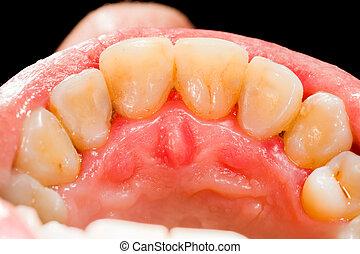 Upper Teeth