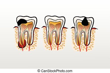 Vector illustration of tooth Decay Caries