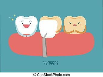 Veneers teeth of dental