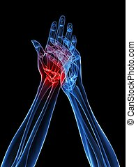 3d rendered x-ray illustration of human hand with painful joint