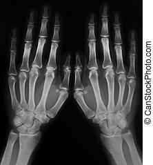 black and white photo of x-ray film with image of human hands